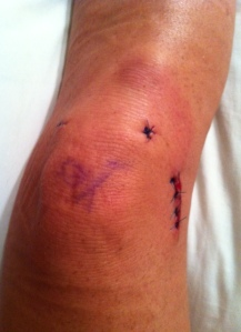 This is the top view.  If you notice writing on my knee cap, it says YES, meaning that is the correct knee on which to operate!